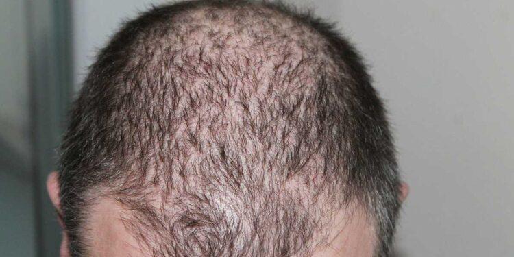 الفرق بين الصلع وتساقط الشعر