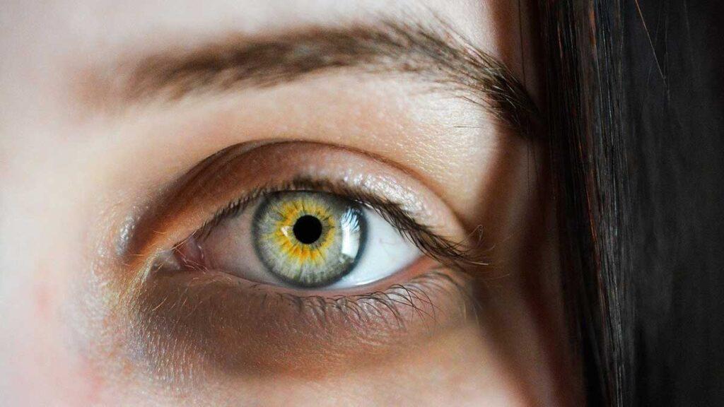 الهالات السوداء حول العين