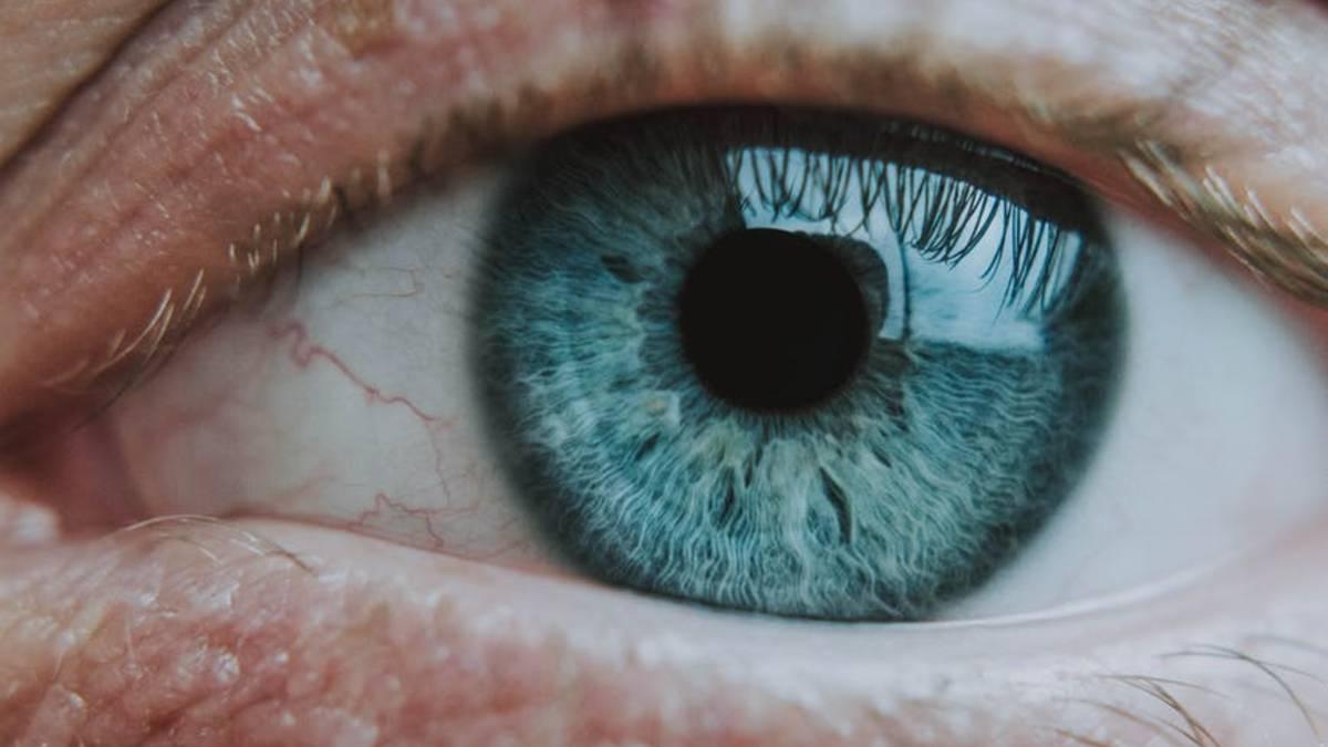 زغللة العين