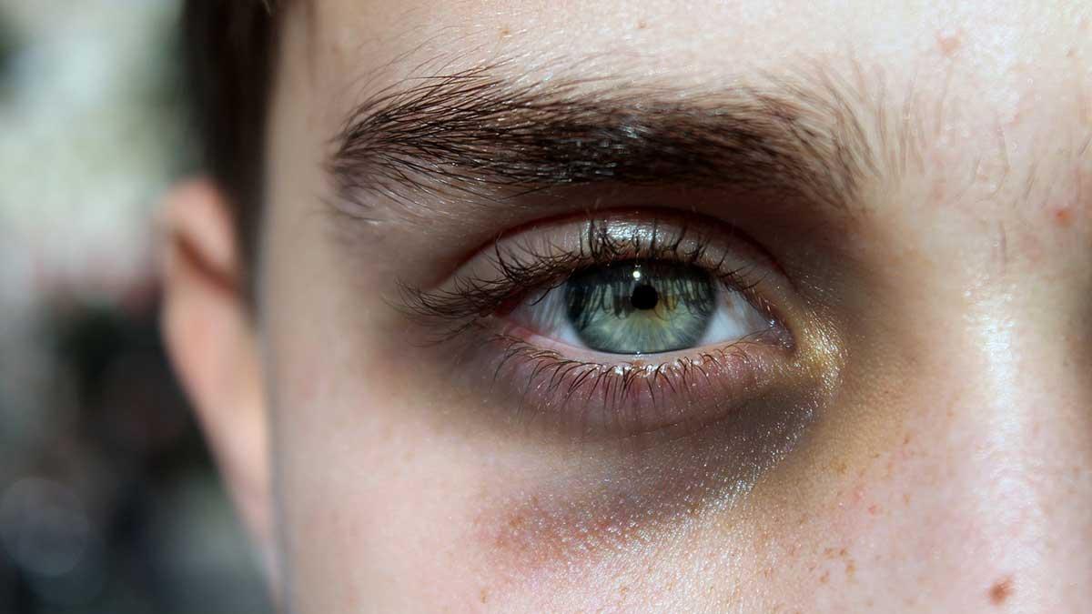 ما هو سبب سواد تحت العين؟ 15 حالة قد تكون خلف الهالات السوداء