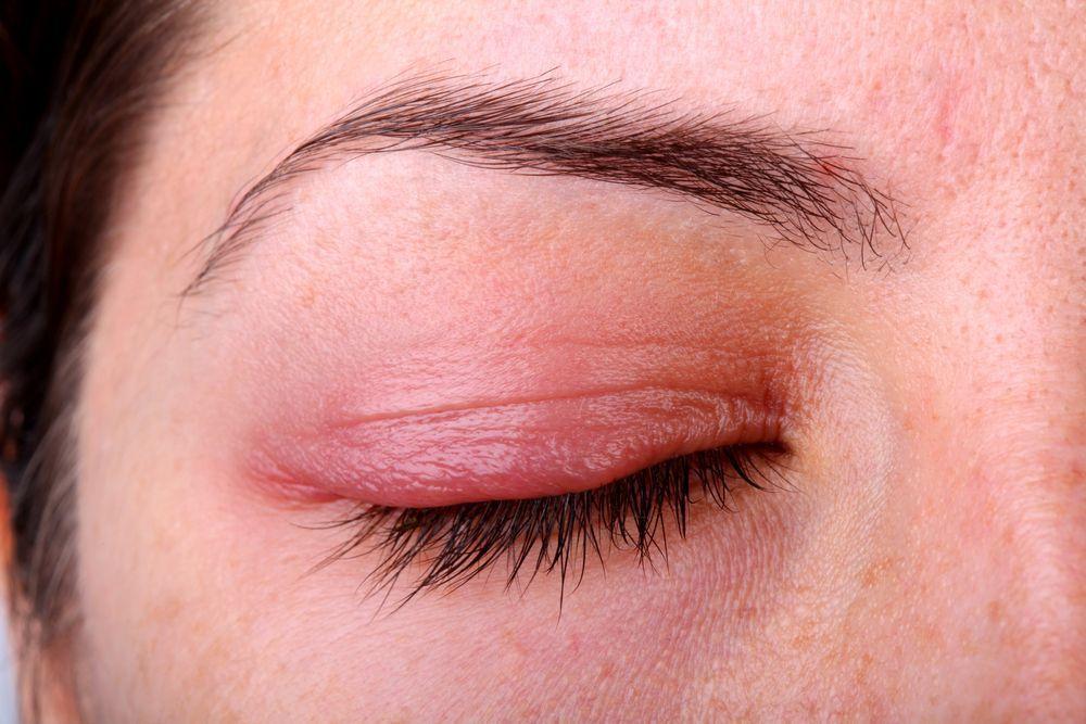 التهاب حول العين