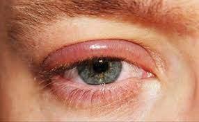 حساسية حول العين