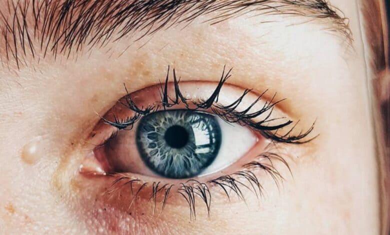 ظهور عروق حمراء في بياض العين